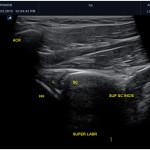Diagnostyka USG stawu ramiennego - obrąbek stawowy